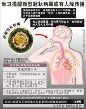 中國確診首例「類SARS」病例 密切接觸者至少有193人