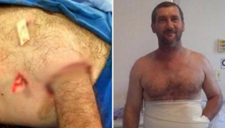 男子受工伤医生把手缝肚子里竟奇迹复原
