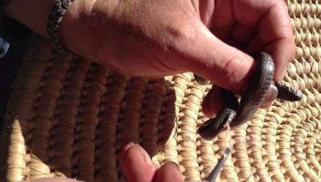 男子为蛇做手术取出15厘米长寄生虫