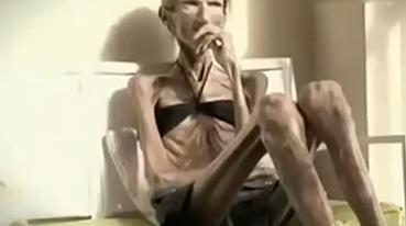"""极端厌食症!让她从女神变成体重50斤的""""皮包骨"""""""