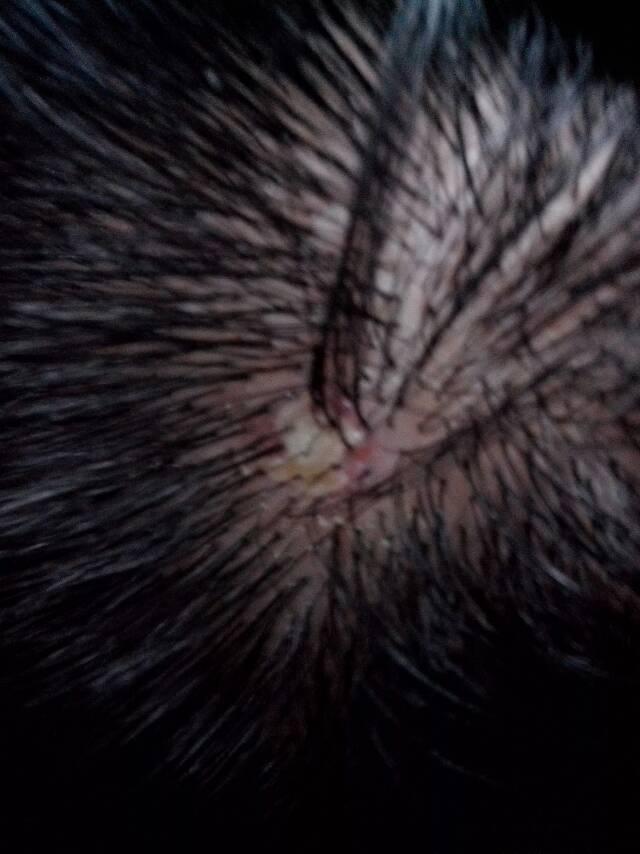 头发根部红肿有黄水,一小片,会不会是疖子图片