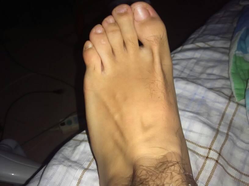 脚太丑 怎么办