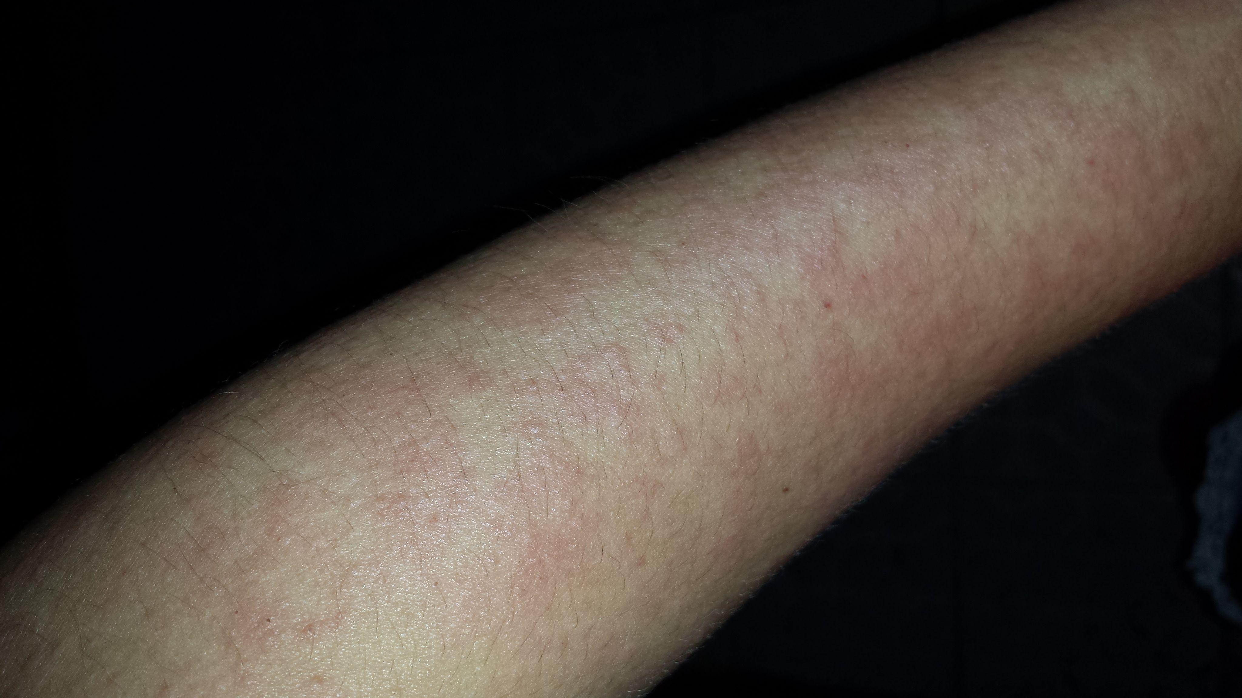皮肤病 大概是什么病图片