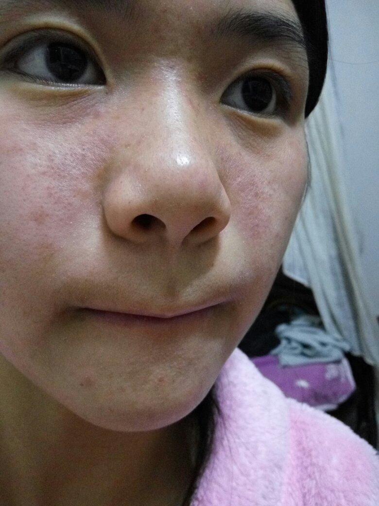 脸上有小米粒疙瘩_脸上总是有小疙瘩是怎么回事而且和粗糙很干