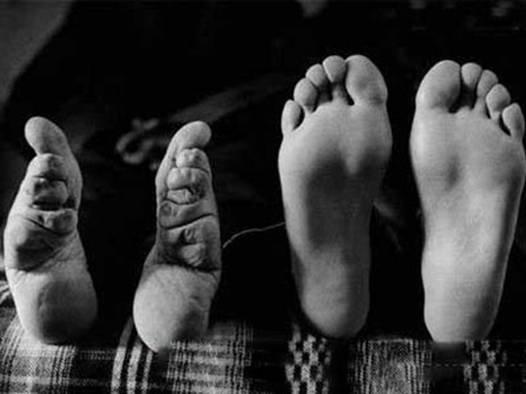 清朝女子裹脚以后对脚有什么坏处吗?