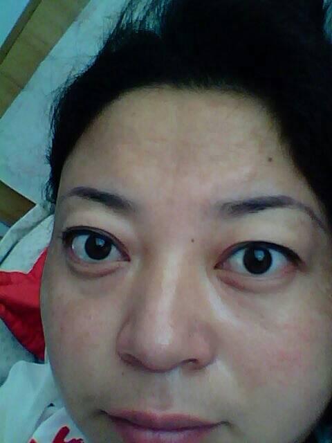 要凸平_这样的眼睛像有甲亢吗,好看吗