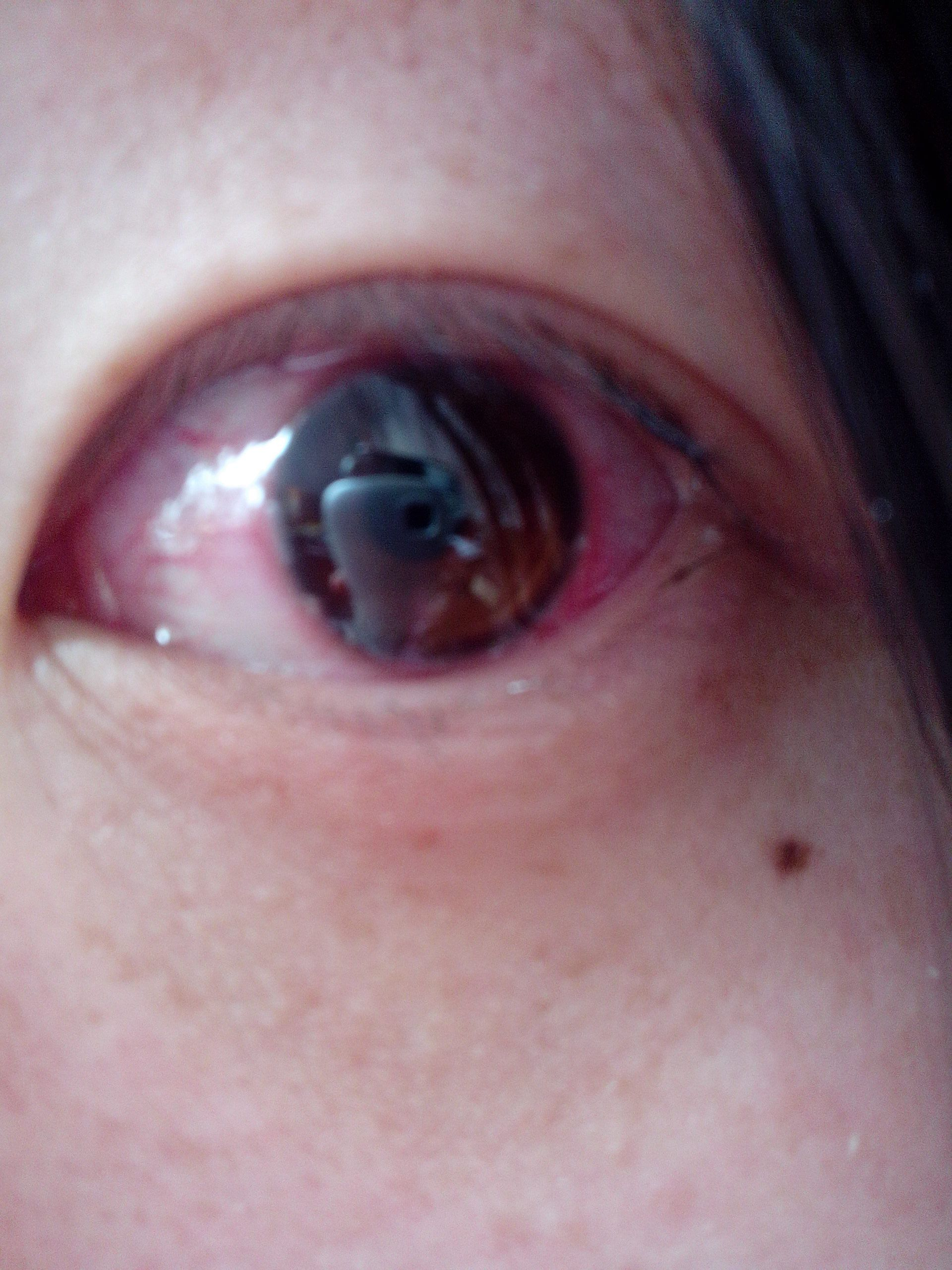 黑眼球上有个白点图片_眼镜啊眼镜