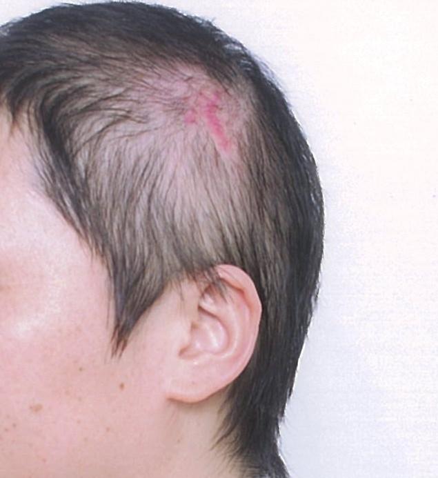 头部受伤,表面伤,有疤痕,现在需带假发,未有骨折及其它异常,工伤评残图片