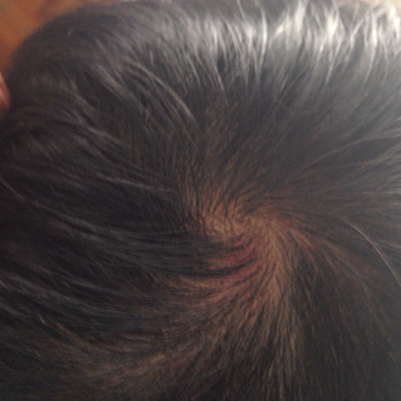 头顶中间头发少,长点红点,以后会不会秃啊图片
