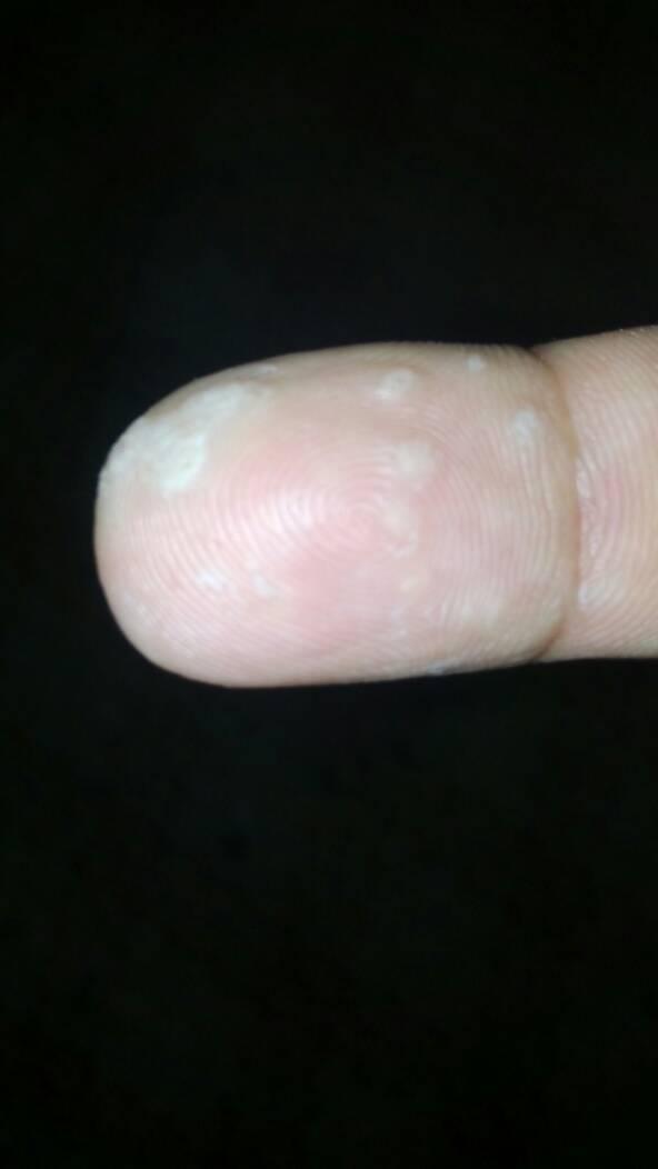 鸡眼与猴子的区别_问:手指上面长的小疙瘩,不是鸡眼和猴子,不知道是什么.
