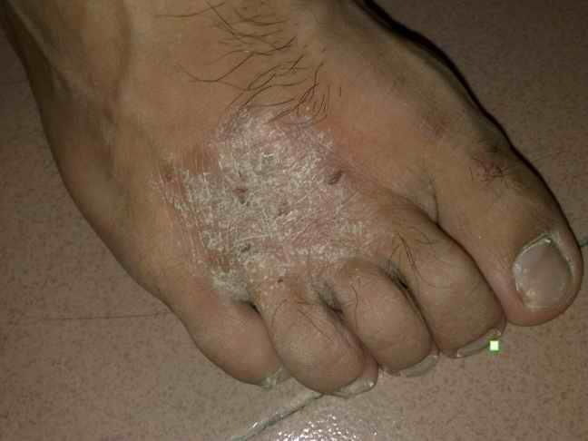 脚上皮肤真菌感染