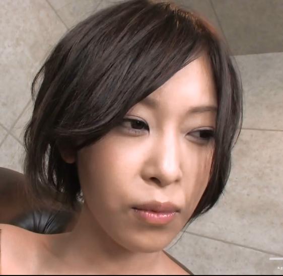 女,36岁,右眼近视一百度,左眼白内障手术后远视几百度