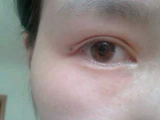 眼睛下面的痣代表什么
