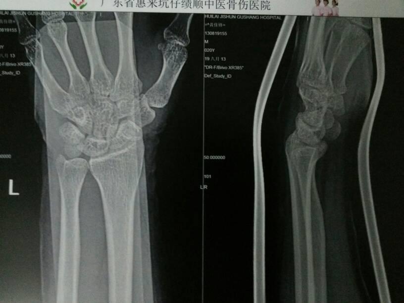 问:8月5号手腕骨裂,当天夹板固定,五天后消肿了,现在感觉手已经没事了图片
