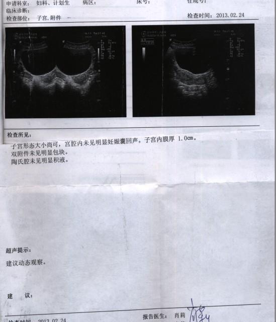 五个半月四维彩超报告 五个半月四维彩超图 五个半月四维男彩超图图片