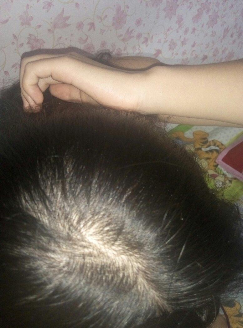 我为什么会掉头发? 我16岁 但不是很严重 手一抓就会掉5.图片