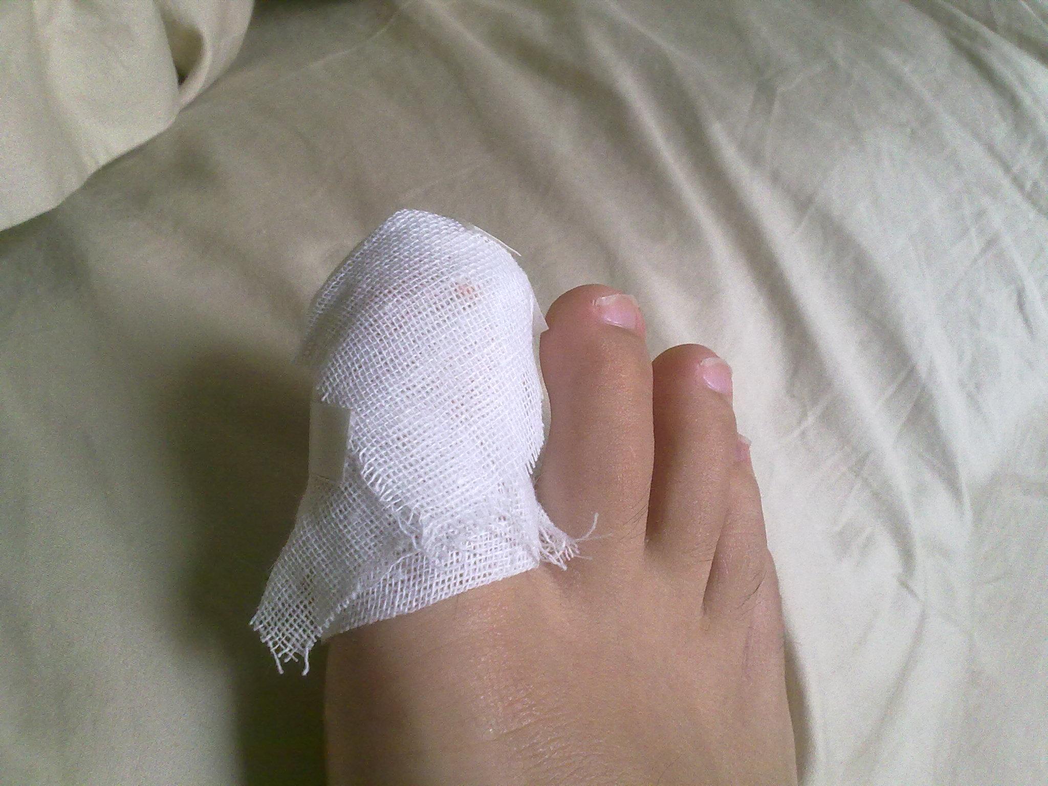 婴儿脚趾畸形 因裹足脚趾畸形图片高清图片