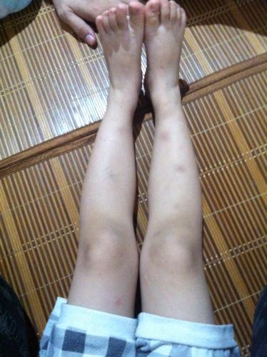 走路八这是罗圈腿丶o型腿腿或型腿吗?
