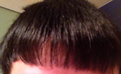 头发前面这个旋怎么去除图片