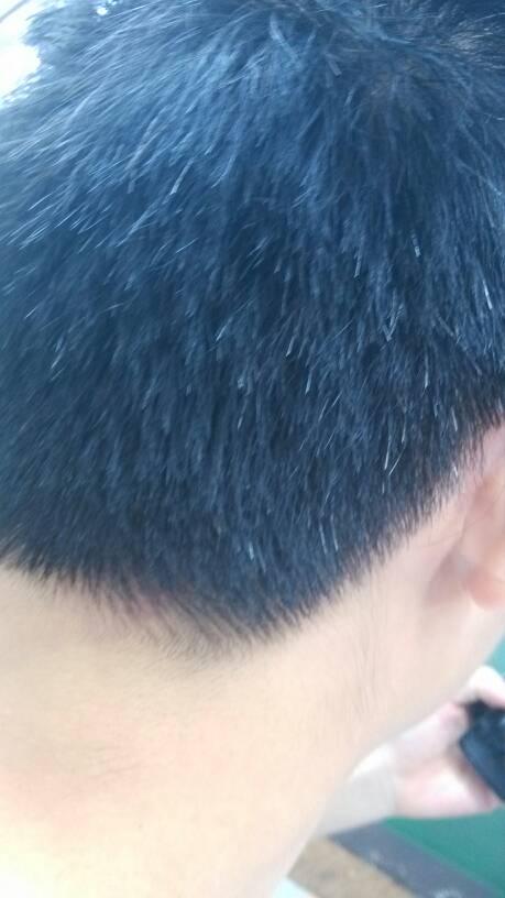 有没有什么好的办法可以治白头发图片