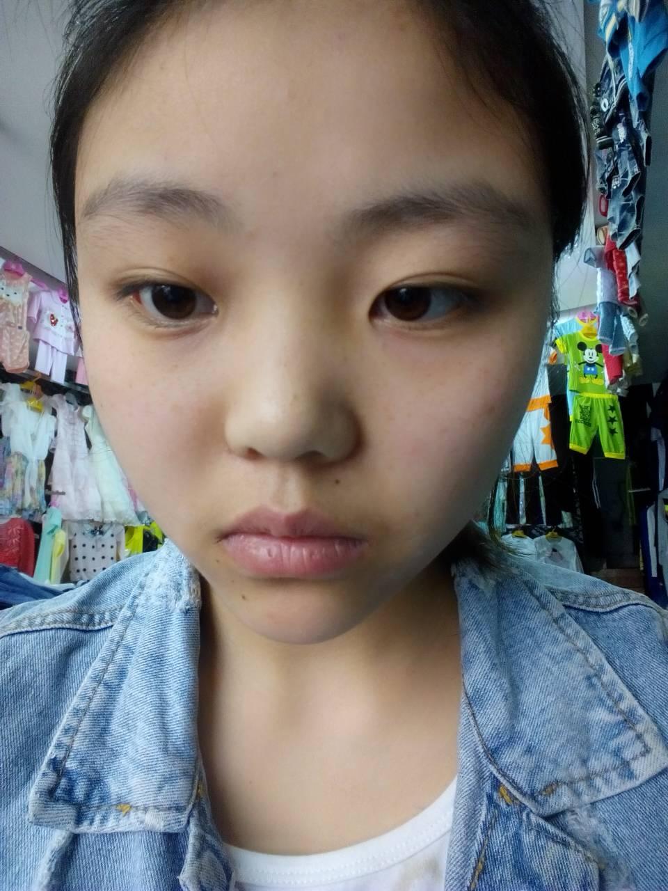 大脸,俩边有点宽,厚嘴唇,塌鼻子,大眼睛.想做个发型图片