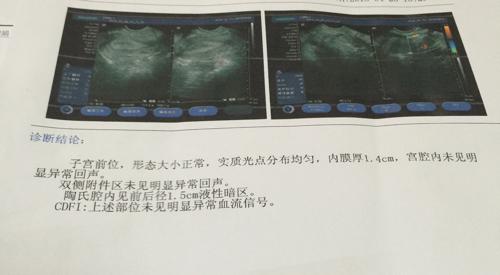 盆腔积水_请问,一年前彩超检查说盆腔炎有少量的积液,是盆腔炎