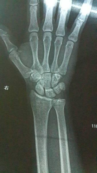2014-05-27 李庆峰 医师 两个月前由于打篮球导致右脚脚踝轻微骨裂图片