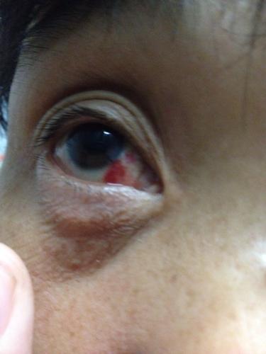 眼睛充血但是不痛不痒_今天发现眼睛出现血块不痛不痒不知道是