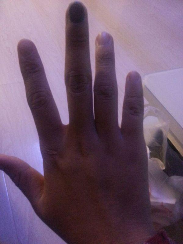 疼了 就是整个手指甲淤血 还没消除 怎么办