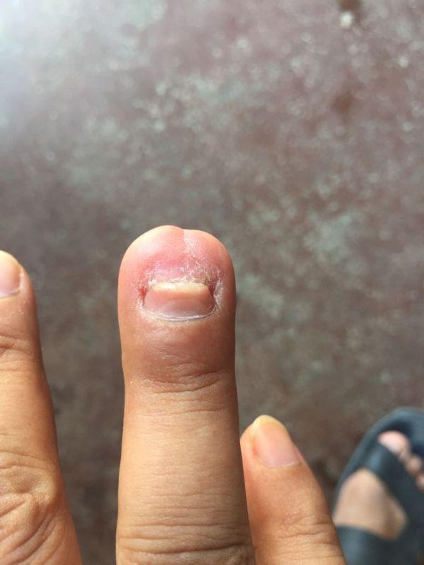 月14日搬磁砖压伤 是用手指肚压破到手指甲那,当时去医院做了清