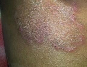 大腿内侧皮肤癣,男性大腿内侧根部很痒,大腿内侧痒抹什么药好