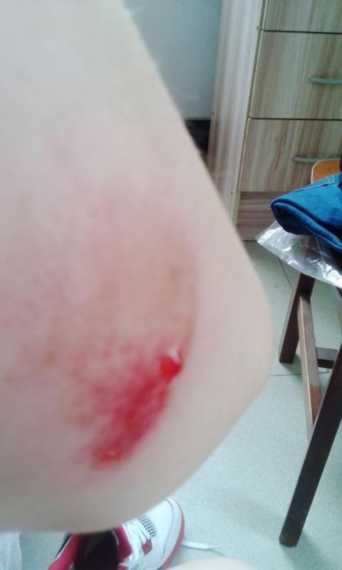 跑步摔倒了擦伤手臂,伤口出血,但是擦不掉