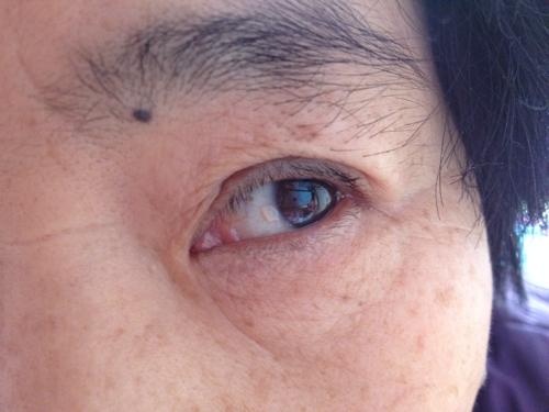 黑眼球上有个白点图片_双眼在白眼球上紧靠黑眼球那长了两个白色的