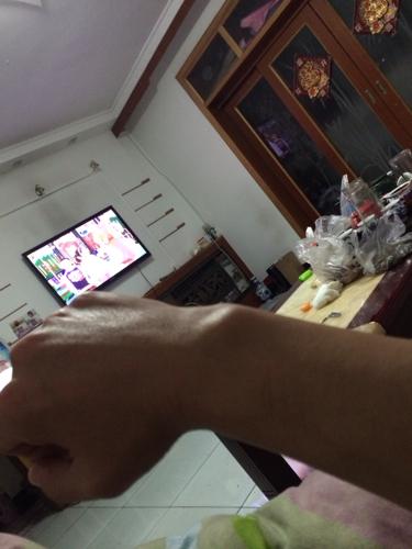 手腕起一个大包不是肿没有外伤