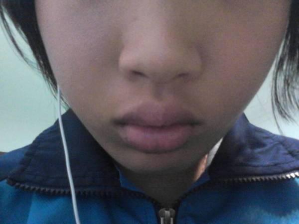 厚嘴唇变薄的自然方法